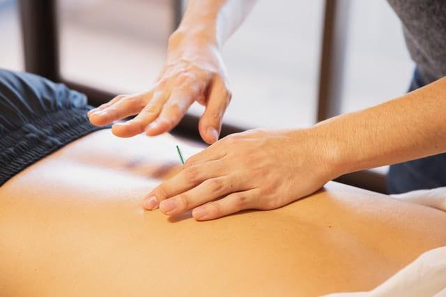 Séance d'acupuncture.